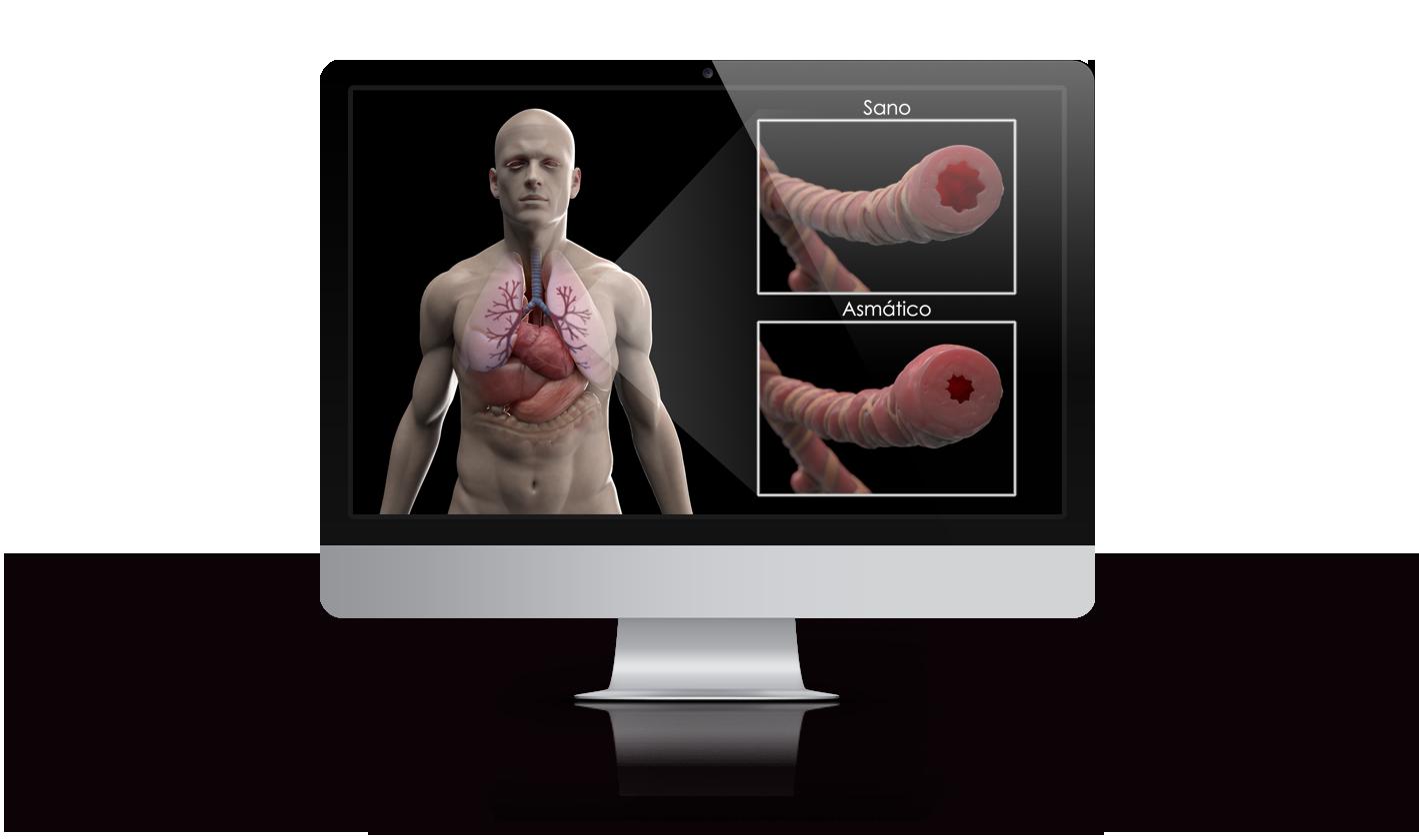Banco de imagen médica 3D bronquio